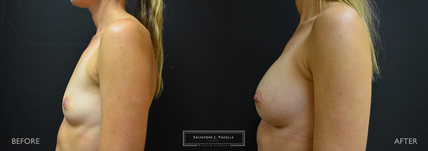 San Diego | La Jolla | Carmel Valley | Del Mar | Encinitas | Plastic Surgery | Cosmetic Surgery | Breast Augmentation San Diego | Boob Job | Breast Implants San Diego | MemoryGel | Silicone Breast implants | Moderate Profile | Natural breast shape | Silicone vs Saline | Gummy Bear Implant | Mentor Breast Implant