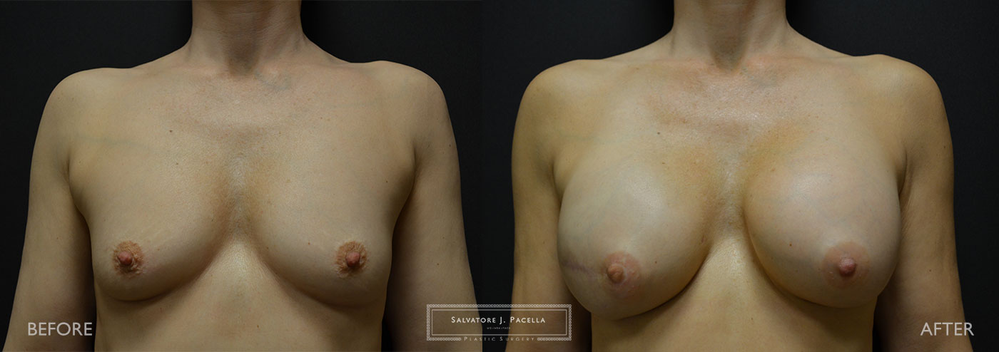 Scripps Plastic Surgeon | Breast Reconstruction | Mastectomy | Breast Implants | Del Mar | San Diego | La Jolla | Plastic Surgery | Reconstructive Surgery | Breast Surgery | Latissimus Flap