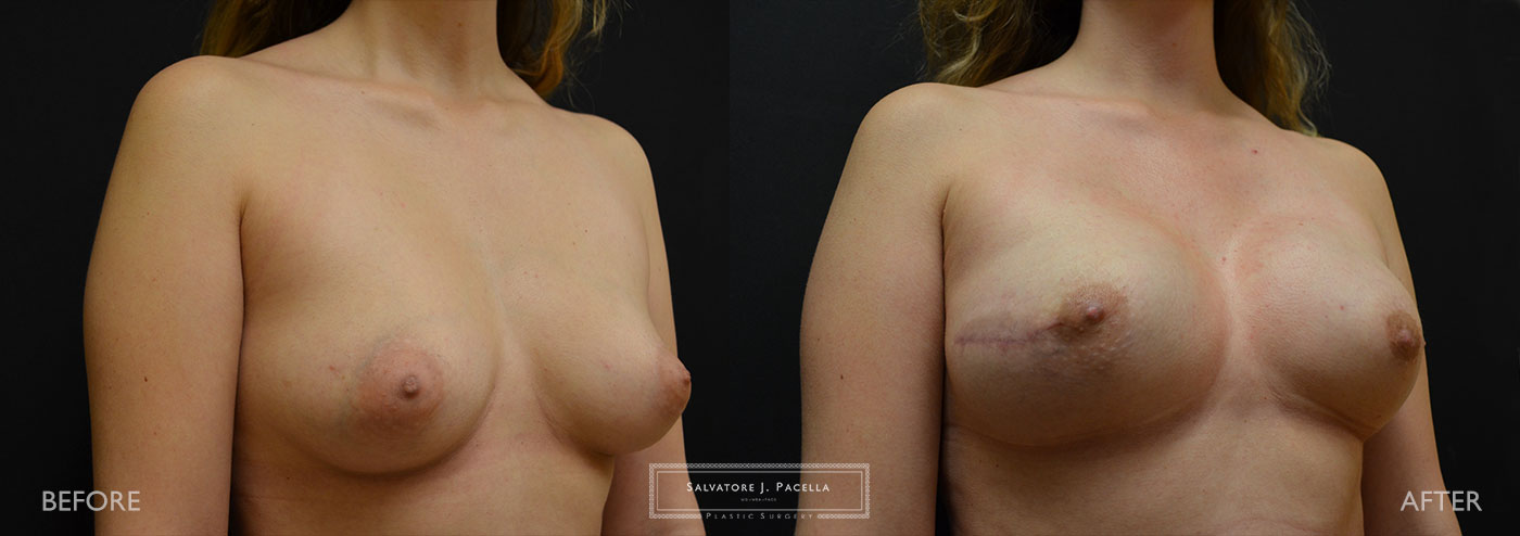 Scripps Plastic Surgeon | Breast Reconstruction | Mastectomy | Breast Implants | Del Mar | San Diego | La Jolla | Plastic Surgery | Reconstructive Surgery | Breast Surgery | Tissue expanders | Artoura | MemoryShape | Mentor breast implants