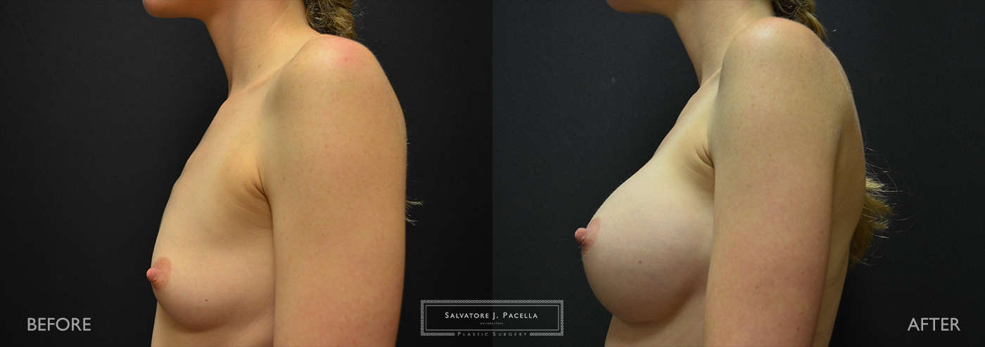 San Diego | La Jolla | Carmel Valley |Del Mar | Encinitas | Plastic Surgery | Cosmetic Surgery | Breast Augmentation San Diego | Boob Job | Breast Implants San Diego | MemoryGel | Silicone Breast | Natural Breast shape | Moderate Profile | Silicone vs Saline | Gummy Bear Implant | Mentor Breast Implants