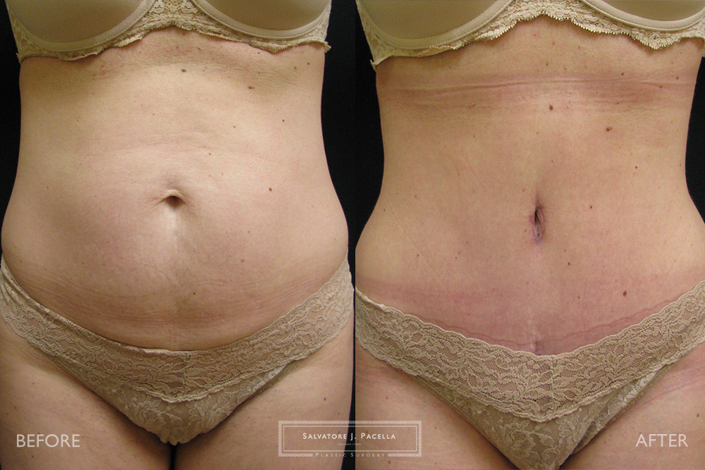San Diego | La Jolla | Carmel Valley | Del Mar | Encinitas | Plastic Surgery | Body Contouring Tummy Tuck | Abdominoplasty | Top Plastic Surgeon