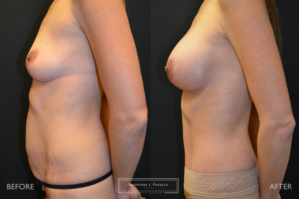 San Diego, La Jolla, Carmel Valley, Del Mar, Encinitas, Plastic Surgery, Body Contouring, Tummy Tuck, Mommy Makeover, Boob Job, Breast Augmentation, Top Plastic Surgeon