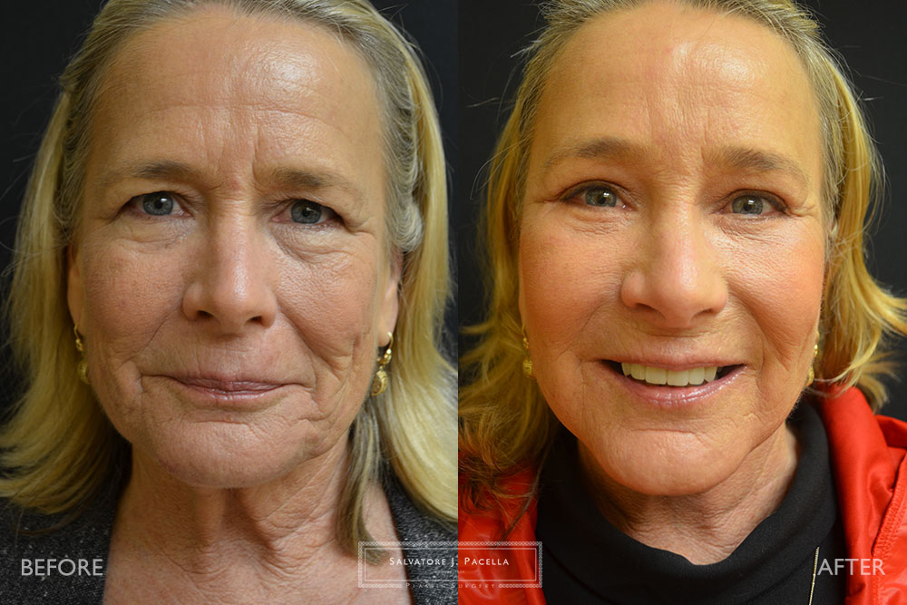 San Diego | La Jolla | Carmel Valley | Del Mar | Encinitas | Plastic Surgery | Cosmetic Surgery | Facelift | Browlift | Fat Transfer | Facial Rejuvenation | Top Plastic Surgeon | Chin Augmentation | Necklift | Eyelid Surgery | Blepharoplasty | Browlift